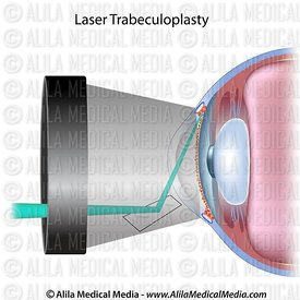 Laser trabeculoplasty for glaucoma