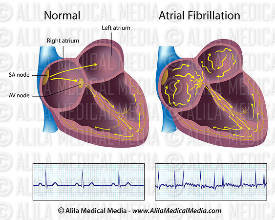 Atrial fibrillation labeled.