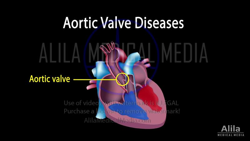 Aortic valve diseases NARRATED animation