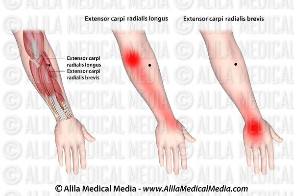Trigger points and referred pain for the extensor carpi radialis