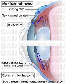 Iridectomy for acute glaucoma treatment.
