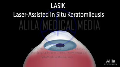 LASIK eye surgery NARRATED animation
