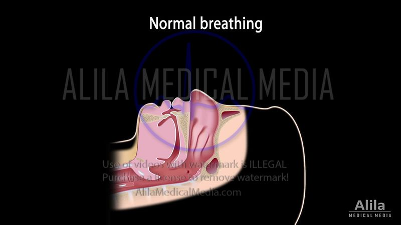 Snoring, OSA and treatment NARRATED video