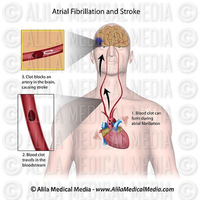 Atrial fibrillation causing brain stroke, labeled.