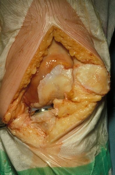 Oxford unilateral knee replacement shown in extension