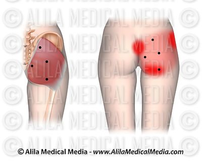 Trigger points and referred pain for the gluteus maximus