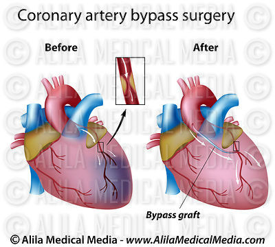 Heart bypass procedure