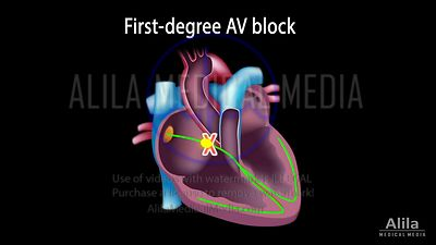 Heart block NARRATED animation part 2 (AV block)