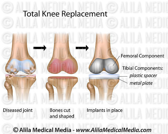 Total knee replacement surgery diagram.