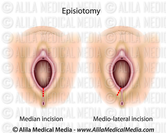Episiotomy diagram.