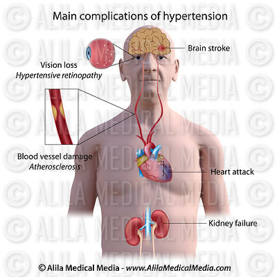 Complications de l'hypertension