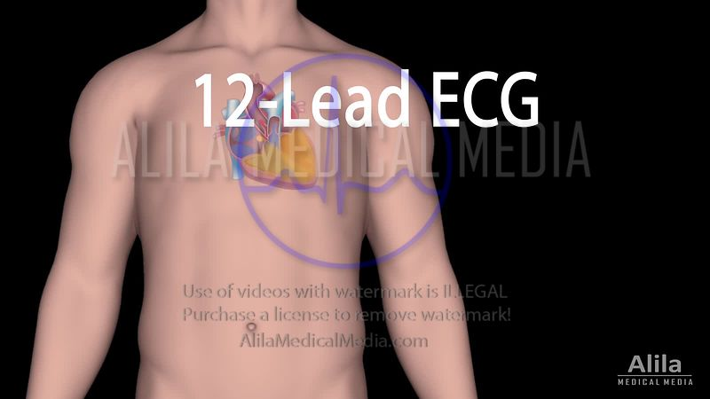 12-lead ECG Explained, NARRATED Animation