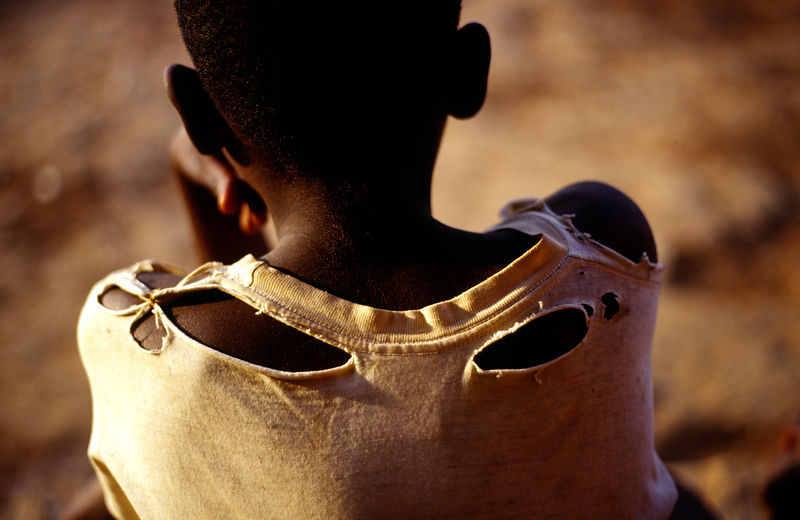Burundi - Ruyigi - An orphan boy of Burundi's ethnic conflict with a torn shirt