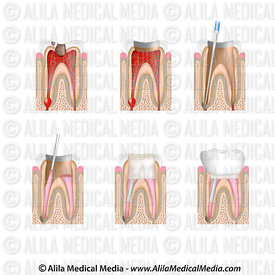 Root canal treatment, unlabeled version.