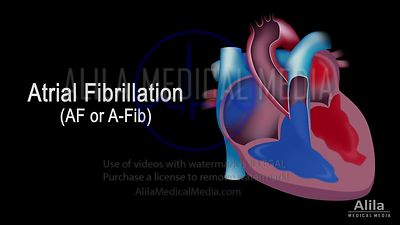 Atrial fibrillation NARRATED animation