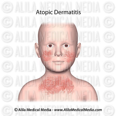 Eczema (atopic dermatitis ) on a child