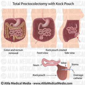 Total Proctocolectomy with Kock Pouch