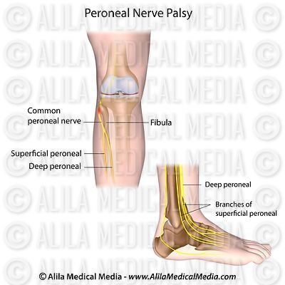 Peroneal nerve palsy