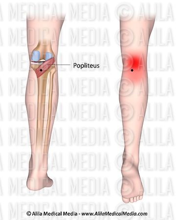Trigger points and referred pain for the popliteus muscle