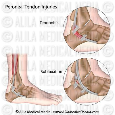 Peroneal Tendon Injury diagram.