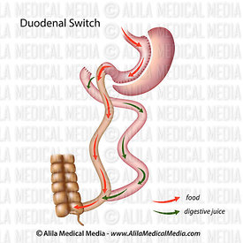 Duodenal switch unlabeled