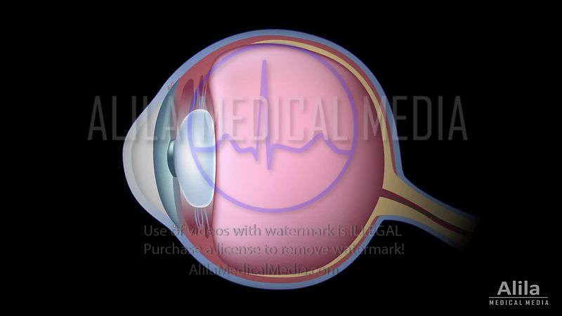Glaucoma, video