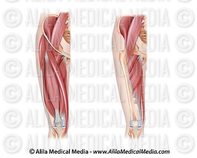 Thigh muscles anterior unlabeled.