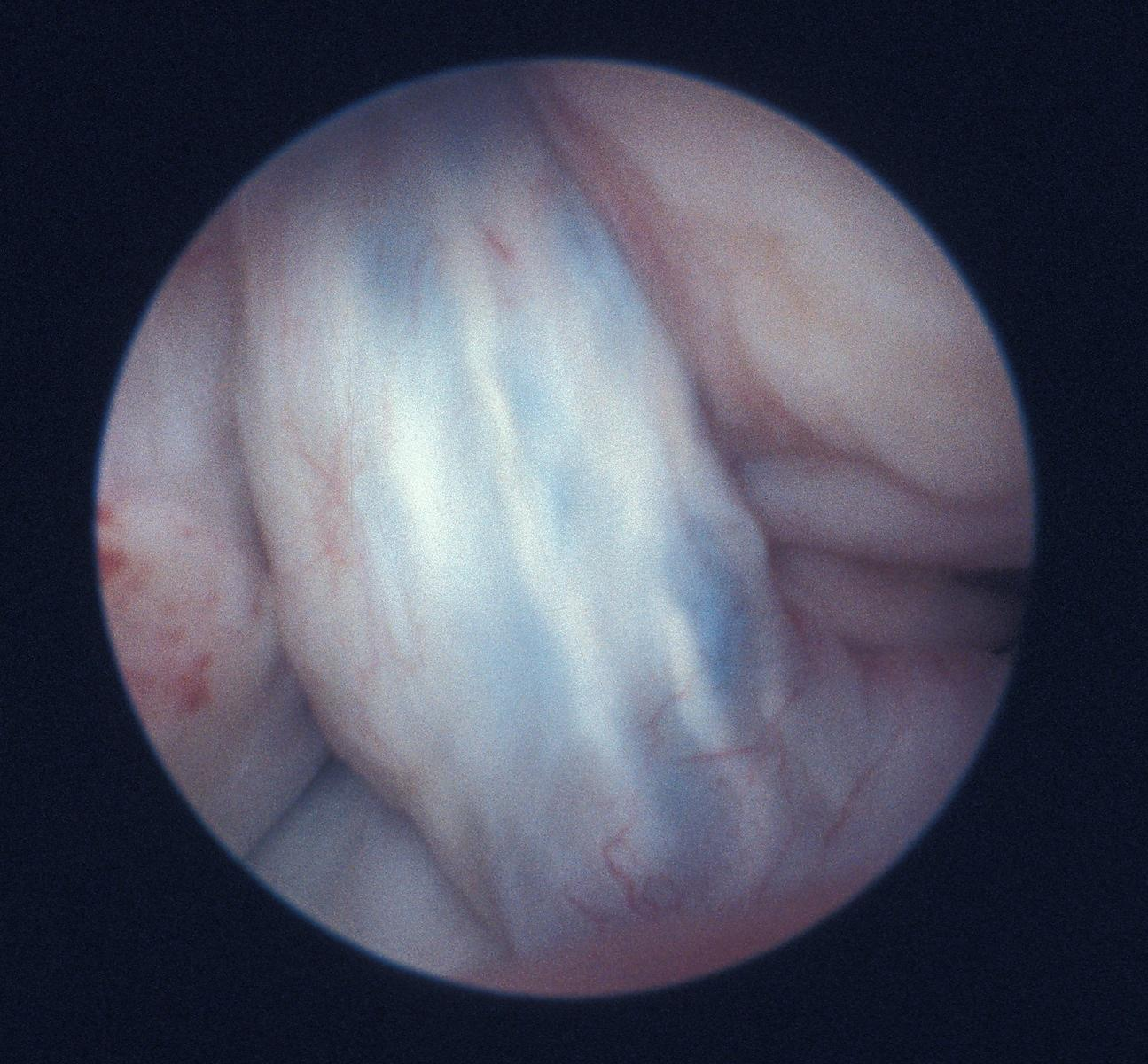 View of the intercondylar notch following repair to anterior cruciate ligament with Surgicraft ABC carbon fibre polyester lig...