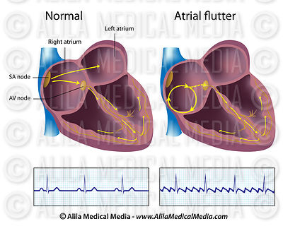 Atrial flutter labeled