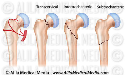Locations of hip fractures and hip joint blood supply