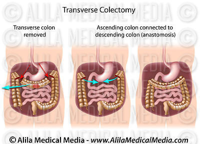 Transverse colectomy.