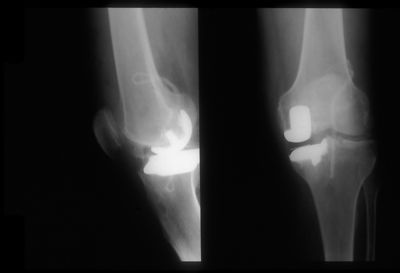 Oxford unilateral knee replacement and ABC Carbon fibre ligament replacement for Anterior Cruciate ligament. Note this ligame...