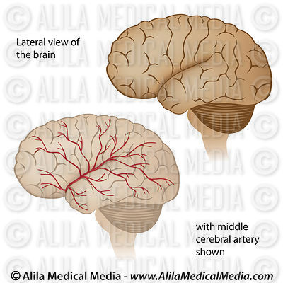 Lateral view of the brain with arteries