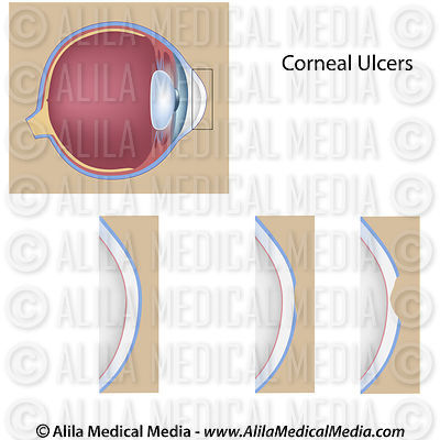 Corneal ulcer, unlabeled.