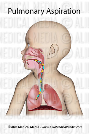 Pulmonary aspiration (in a baby)