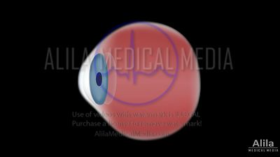 Cataract and Surgery NARRATED animation.