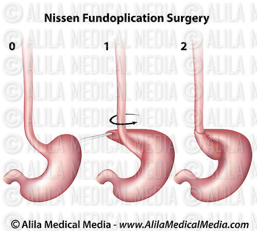 Nissen Fundoplication Surgery