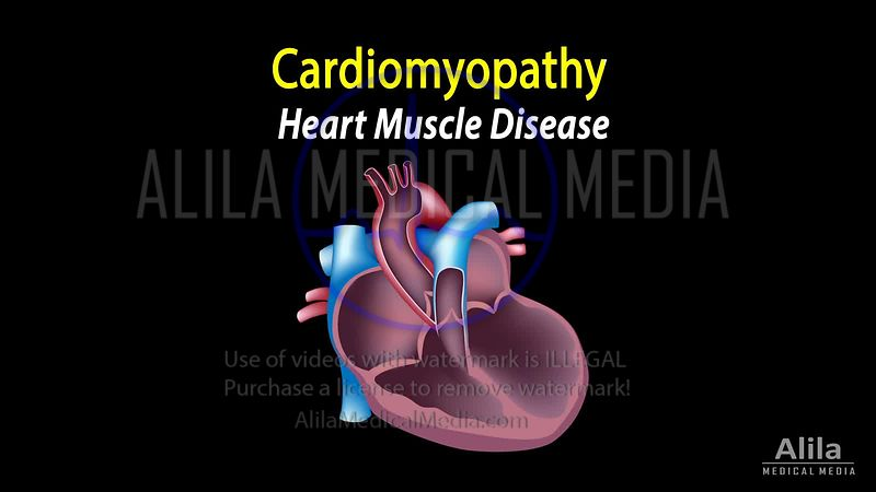 Cardiomyopathy NARRATED animation