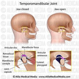 Temporomandibular joint (TMJ) labeled.