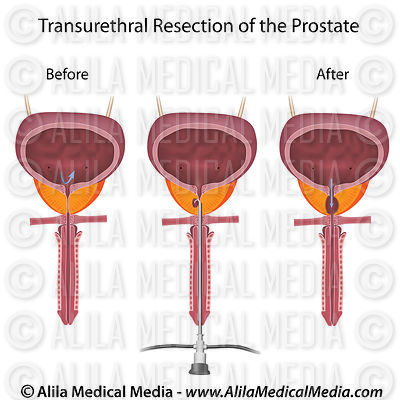Transurethral resection of the prostate.