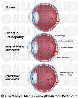 Diabetic retinopathy, labeled diagram.
