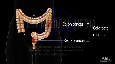 Colon cancers NARRATED animation