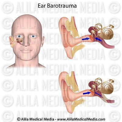 Ear barotrauma drawing.