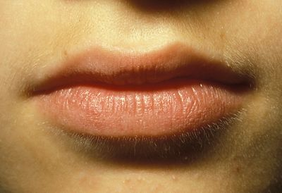 Herpes simplex after treatment red laser