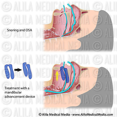 Obstructive sleep apnea treatment.