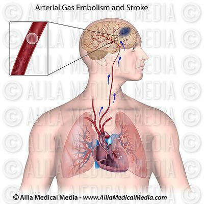 Gas Embolism and Brain Stroke