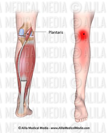 Trigger points and referred pain for the plantaris