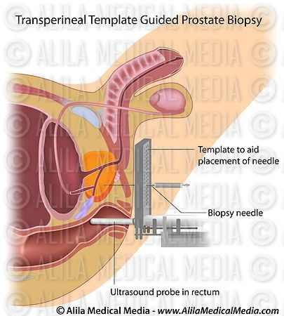 Template guided prostate biopsy procedure