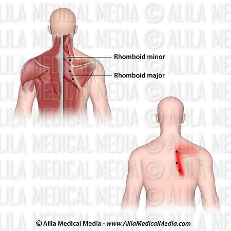 Trigger points and referred pain for the rhomboids