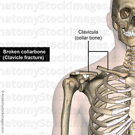 shoulder-clavicula-fracture-clavicle-broken-collarbone-front-skin-names